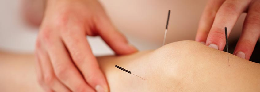 Placing acupuncture needles in persons leg
