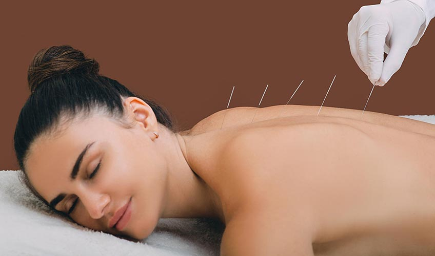Person placing acupuncture needles in woman's back