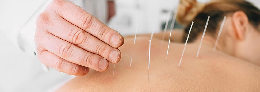 Placing acupuncture needles in womans back