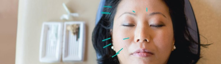Different Forms of Acupuncture Covered by BBI